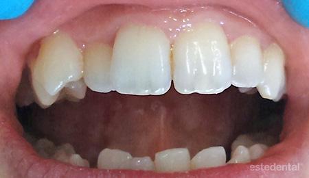 ън зъбната дъга