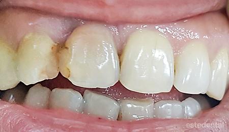 Изходно състояние - дефитализирани зъби с променен цвят