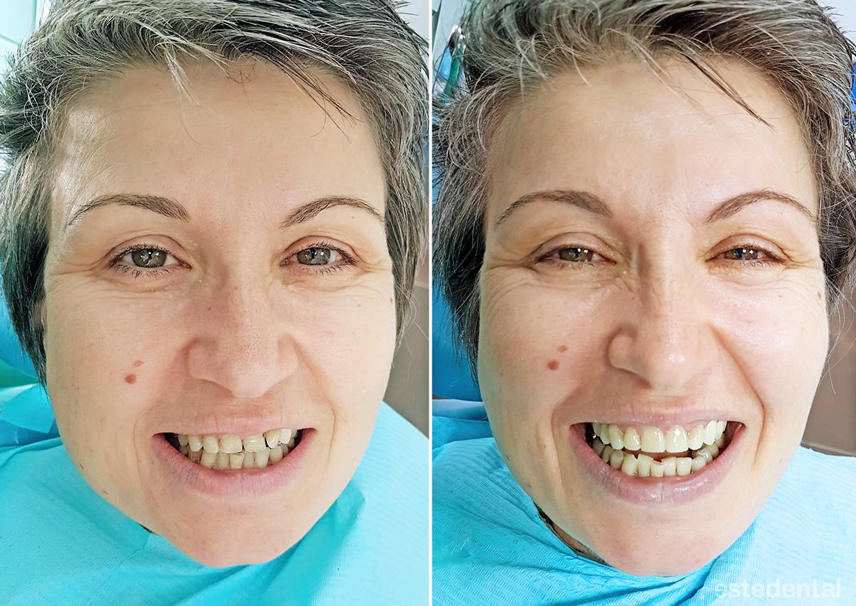 Фотополимерни фасети - преди и след