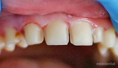 Изпиляване на зъби за порцеланови фасети