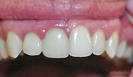 Изходно състояние - порцеланови фасети с различна форма и възпаление на венеца