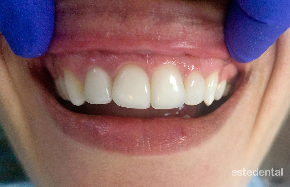 Гингивопластика и порцеланови фасети - краен резултат