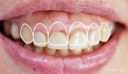 Венечна усмивка - планиране на гингивопластика