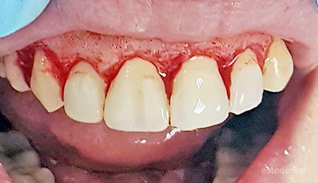 Венечна усмивка - гингивопластика