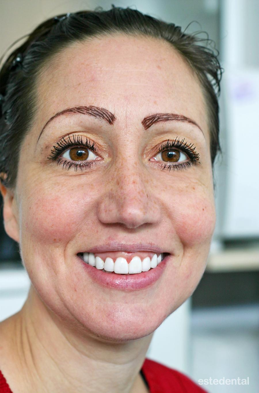Пълна промяна на усмивката с гингивопластика и порцеланови фасети (холивудска усмивка)- краен резултат