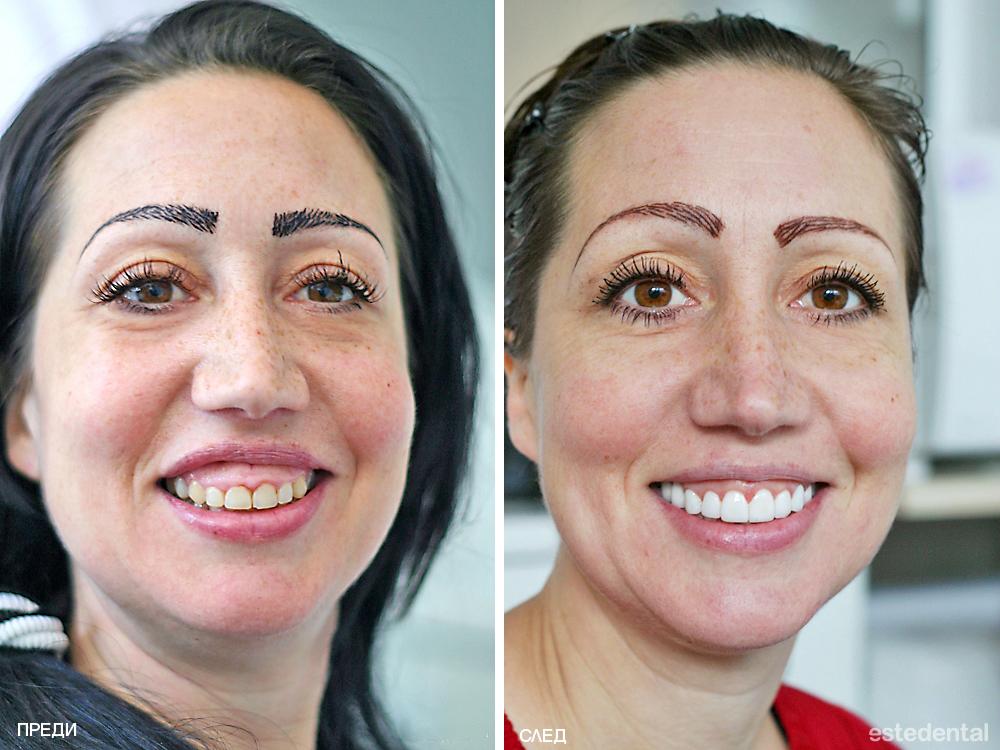 Пълна промяна на усмивката с гингивопластика и порцеланови фасети (холивудска усмивка) - преди и след
