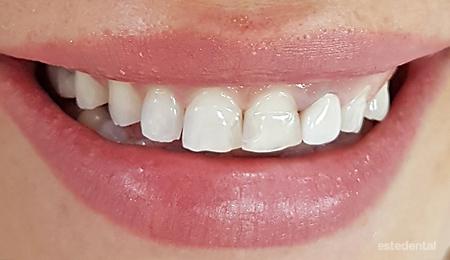 Асиметрична венечна усмивка