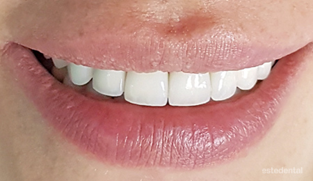 Корекция на венечна усмивка - краен резултат