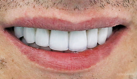 Пълна промяна на усмивката - холидувска усмивка с порцелланови фасети и коронки