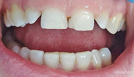 Абразия на зъбите и дълбока захапка преди лечение