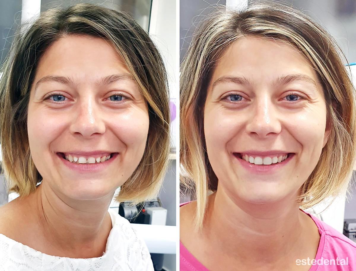 Лечение на дълбока захапка и абразия на зъбите - преди и след