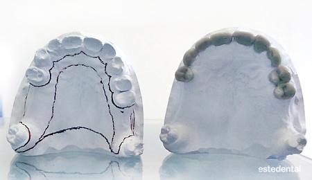 Лечение на абразия на зъбите - изходно състояние и диагностичен моделаж