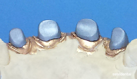 Лети метални щифтови пънчета на работния модел