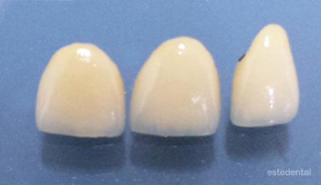 Лечение на абразия - възстановяване с металокерамични коронки