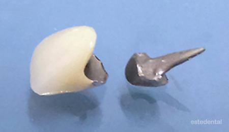 Лечение на абразия - възстановяване с лети щифтови пънчета и металокерамични коронки
