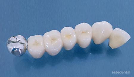 Лечение на абразия - възстановяване на дъвкателните зъби с металокерамични мостове