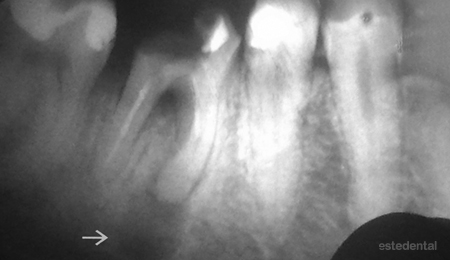 Зъбен гранулом на долен кътник