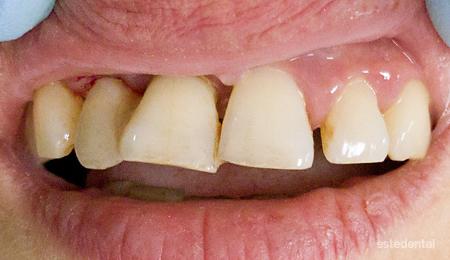 Пародонтит (пародонтоза) - ветрилообразно разместване на зъбите
