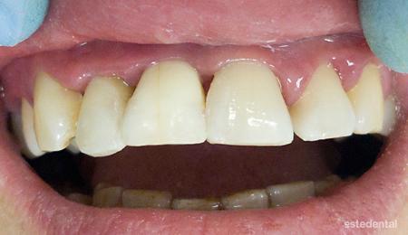 Пародонтит (пародонтоза) - шиниране на зъбите и бондинг