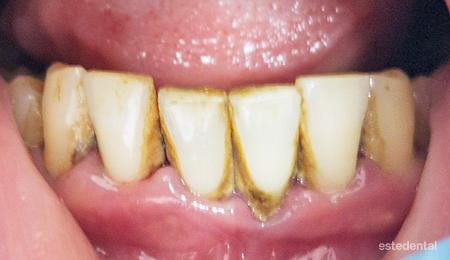 Пародонтит (пародонтоза) - натрупване на зъбен камък