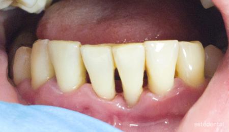 Пародонтит (пародонтоза) - почистване и шиниране на зъбите