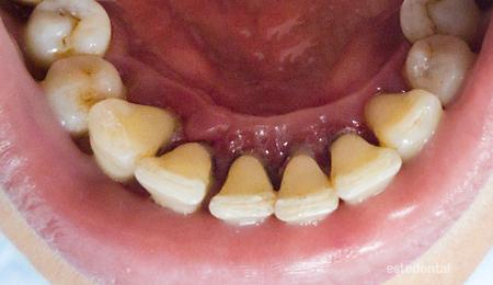 Пародонтит (пародонтоза) - почистване на зъбите