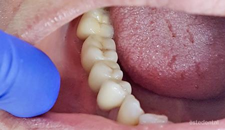 Металокерамичен мост на дъвкателни зъби - краен резалтат