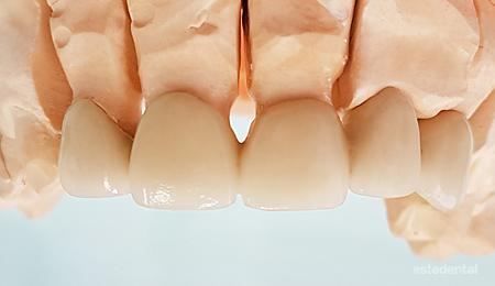 Металокерамичен мост на предни зъби на работния модел