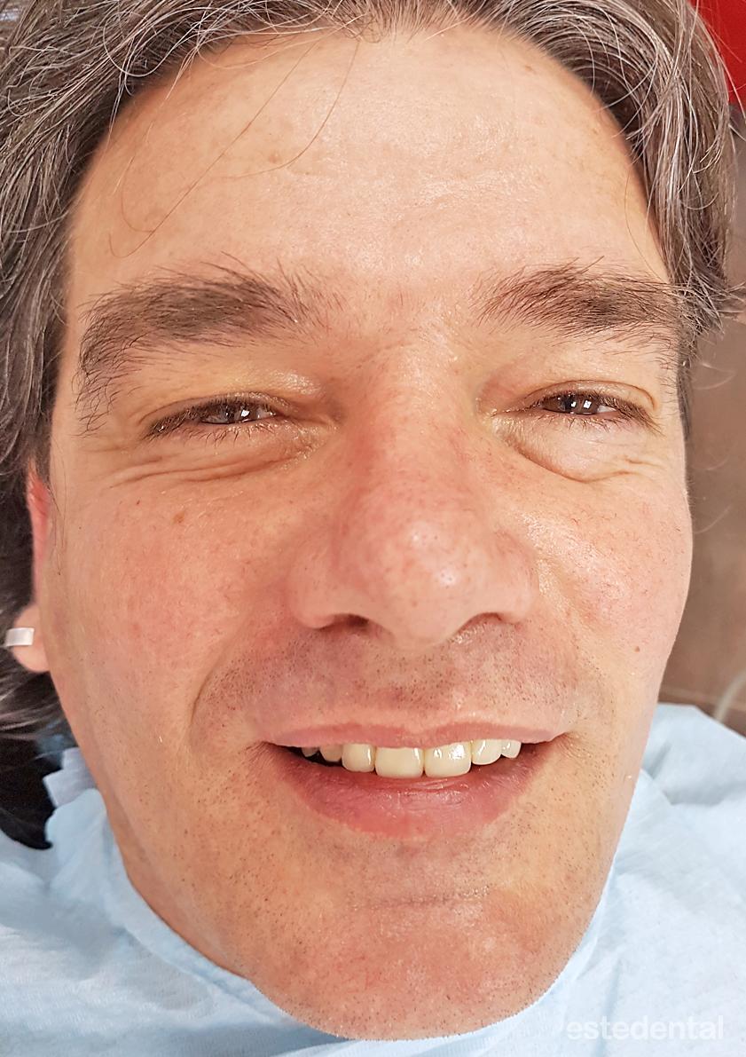 Металокерамичен мост на предни зъби - краен резалтат