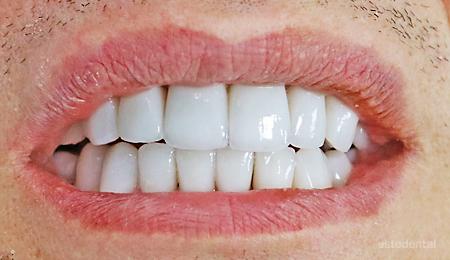 Пълна промяна на усмивката - холидувска усмивка с порцеланови фасети и коронки