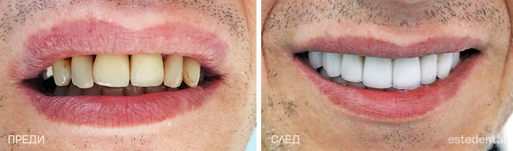 Пълна промяна на усмивката - холидувска усмивка с порцеланови фасети и коронки - преди и след