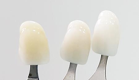 Избор на избелен цвят за порцеланови фасети