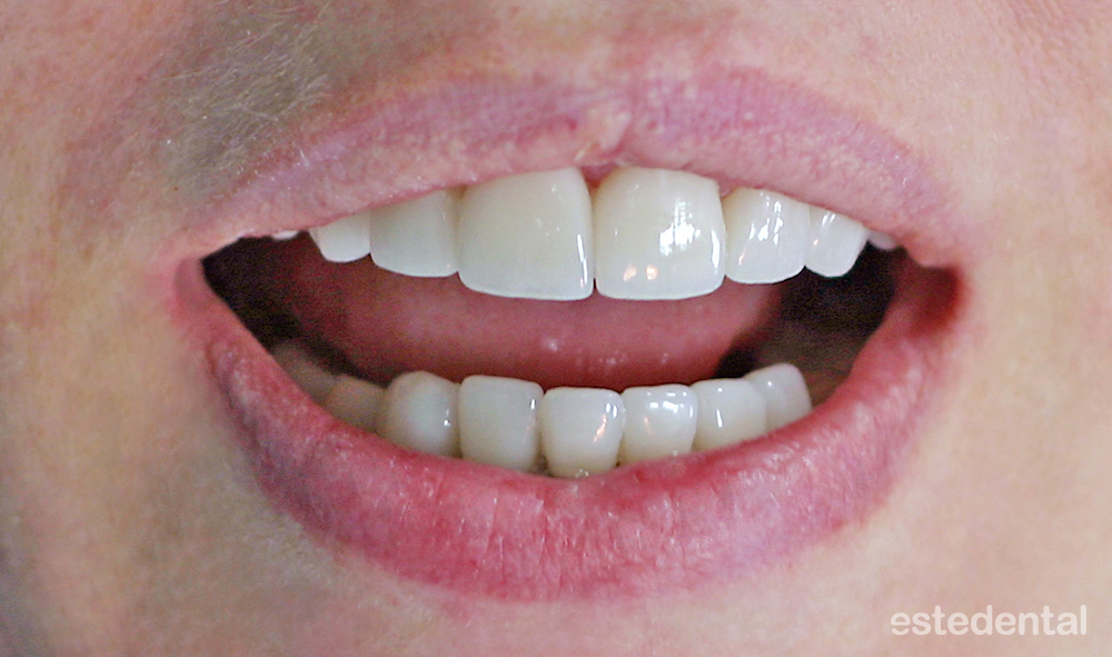 Пълна промяна на усмивката с порцеланови фасети - холивудска усмивка