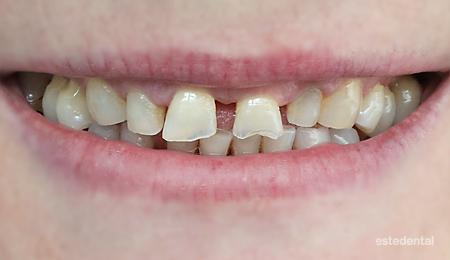 Абразирани зъби и пародонтит