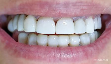 Фотополимерни фасети при пародонтит - холивудска усмивка