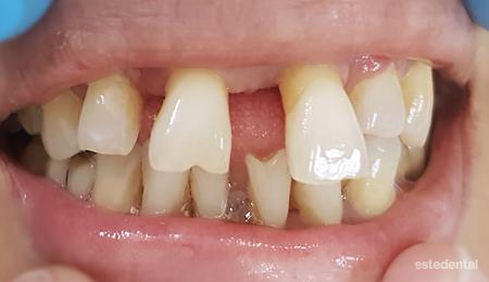 Преместване на зъбите при пародонтит (пародонтоза)