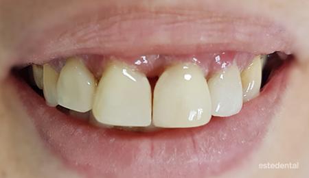 Фотополимерни фасети при зъби с пародонтит