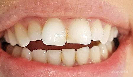 Ситуация преди лечение с порцеланови фасети