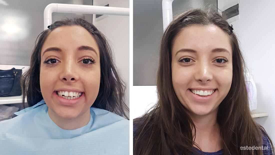 Порцеланови фасети и фотополимерна фасета - преди и след