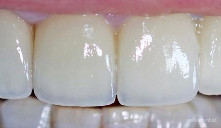 Порцеланови фасети - краен резултат