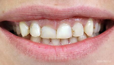 Преди порцеланови фасети - асиметричен гингивален контур, неправилно подредени зъби и дефектирали пломби