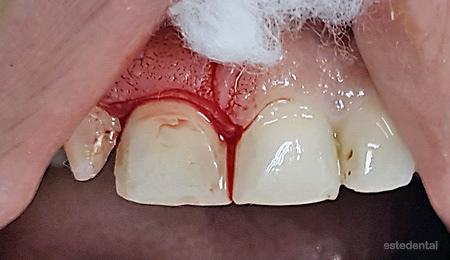 Хирургична корекция на венеца - гингивопластика