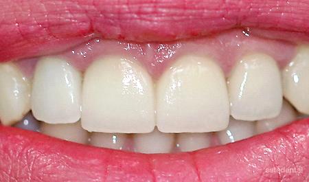 Порцеланови фасети на централните резци след гингивопластика - краен резултат
