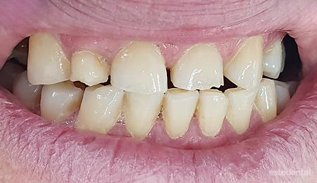 Абразия на зъбите и понижение на захапката