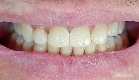 Фотополимерни фасети за възстановяване на абразирани зъби