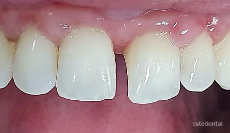 Преместване на зъб по време на бременност