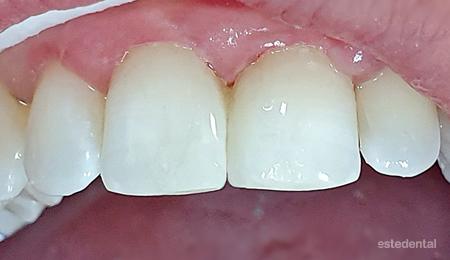 Преместване на зъб по време на бременност - корекция с бондинг