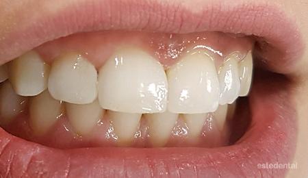Затваряне на разстояния между зъбите - бондинг