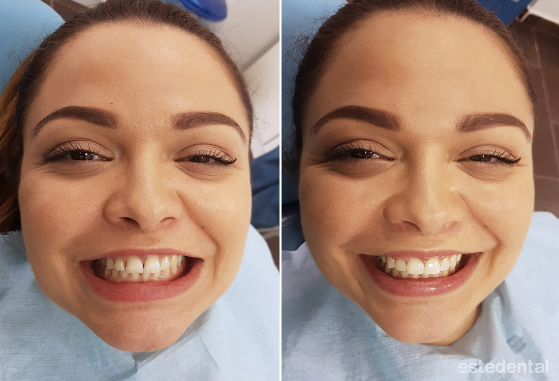 Затваряне на разстояния между зъбите - преди и след