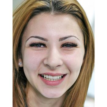 Затваряне на разстояние между зъбите